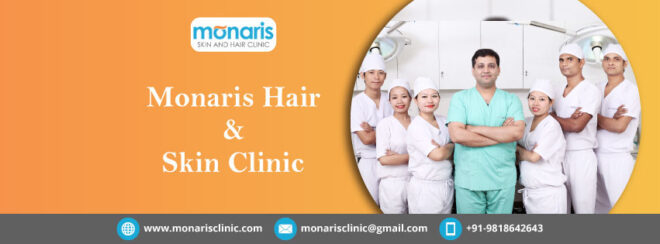 Hair Transplant cost in Delhi 1