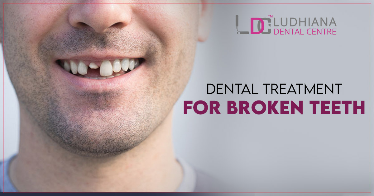 What type of dental treatment is given by a dentist for broken teeth? 2
