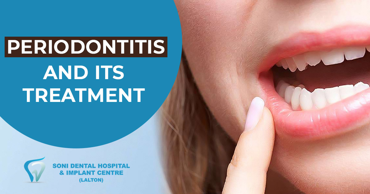 What is Periodontitis and how to carry out proper oral care for healthy gums? 2