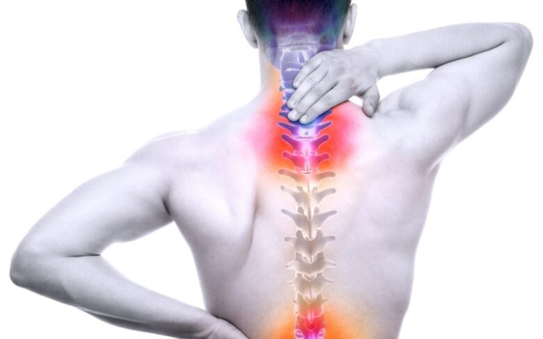 What all do you need to know about Spinal Arthritis and how to manage it? 1