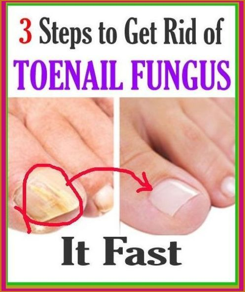 how to cure nail disease 2